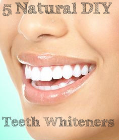 DIY Teeth Whitening Tips